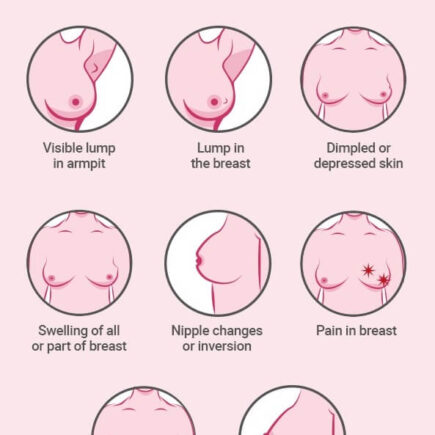 breast cancer infograph